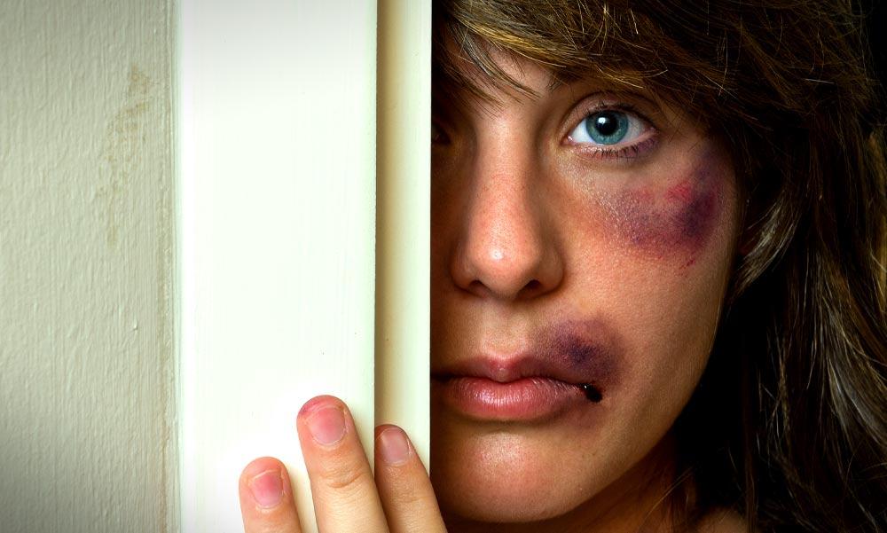 A brutálisan bántalmazott Orosz Bernadettnek becsületsértés miatt kell bíróság elé állnia az őt megverő férfival szemben