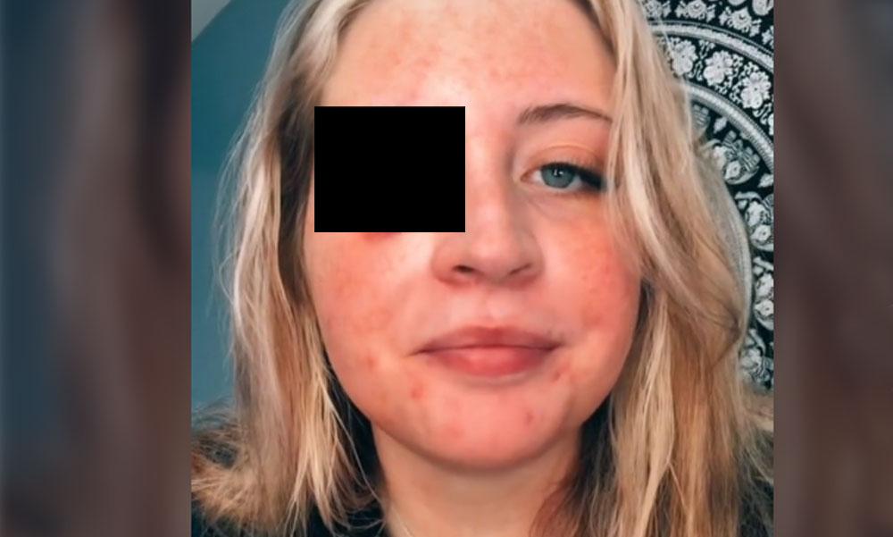 Letépte a vendég szemhéját a kozmetikus csivava kutyája, kórházba vitték a nőt